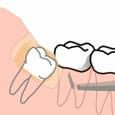 Cirurgia para a Remoção do Dente do Siso