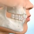 Exodontia de Pré-Molares para Fechamento de Espaços