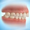 Uso de Mini-Implantes para Retração Dentaria