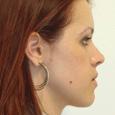 Caso Clínico 1 - Aspecto de perfil