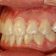 Caso Clínico 1 - Aspecto intra-oral