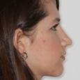 Caso Clínico 2 - Aspecto de perfil