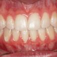 Caso Clínico 2 - Aspecto intra-oral