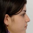 Caso Clínico 3 - Aspecto de perfil