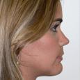 Caso Clínico 4 - Aspecto de perfil