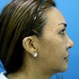 Caso Clínico 5 - Aspecto de perfil
