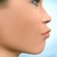 Correção da Face Longa com Impactação da Maxila