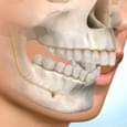 Exodontia de Pré-Molares para Retração Dentaria